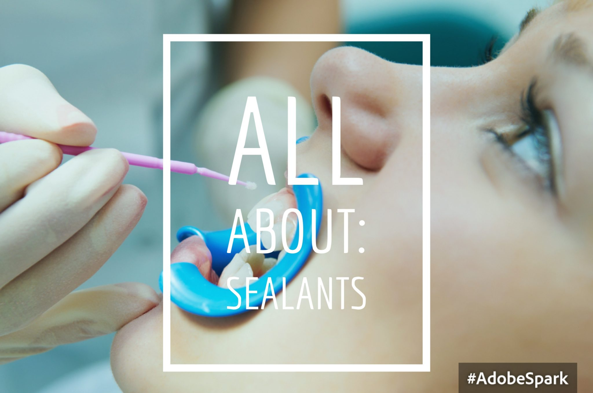 Pediatric Sealants