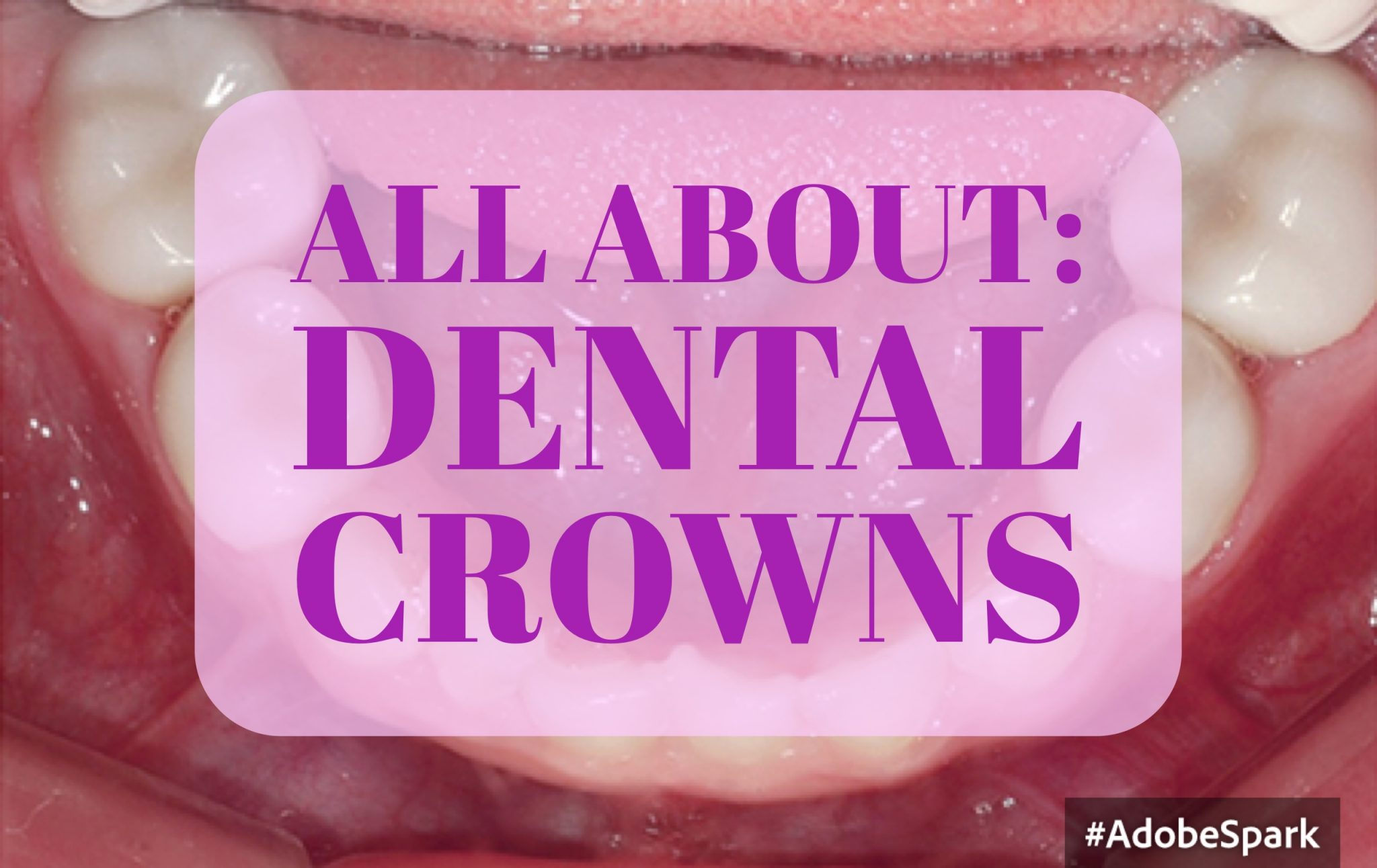 Pediatric Dental Crowns